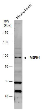 VEPH1 Antibody (PA5-36006) in Western Blot
