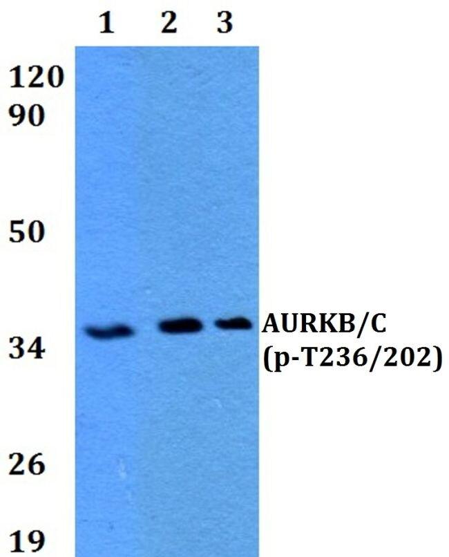 Phospho-Aurora B/C (Thr236, Thr202) Antibody (PA5-36030)