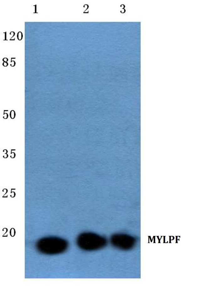 MYLPF Antibody (PA5-36041) in Western Blot