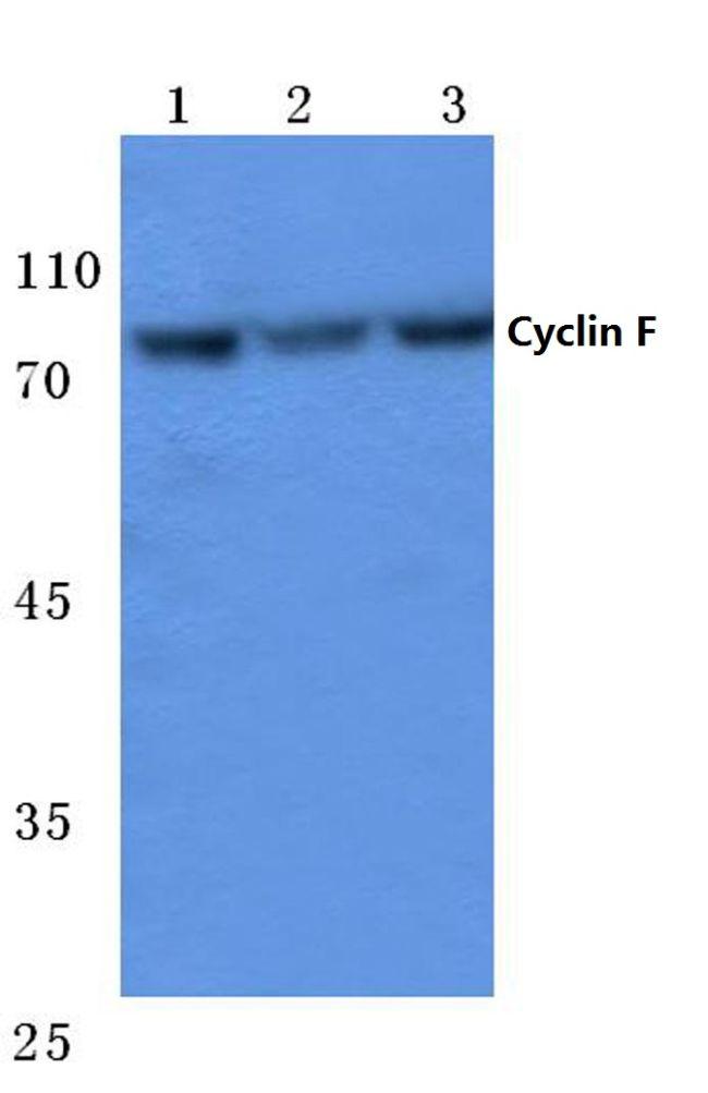 Cyclin F Antibody (PA5-36049) in Western Blot