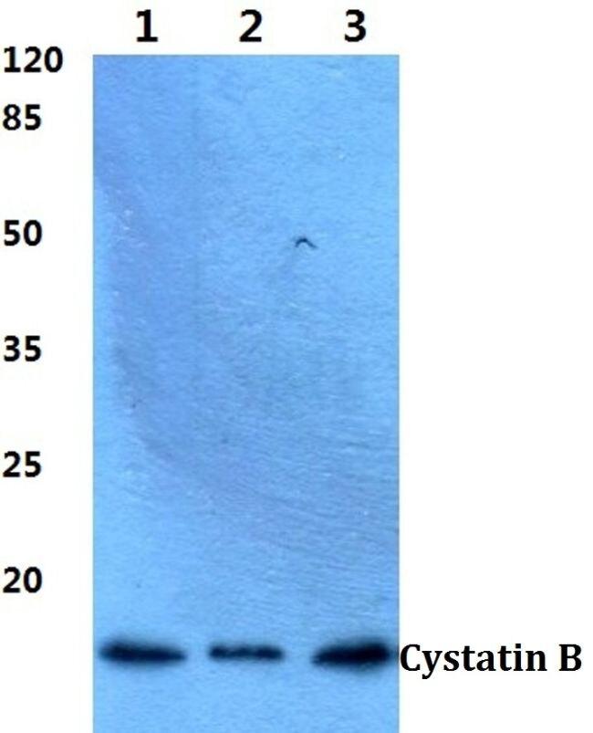 Cystatin B Antibody (PA5-36076) in Western Blot