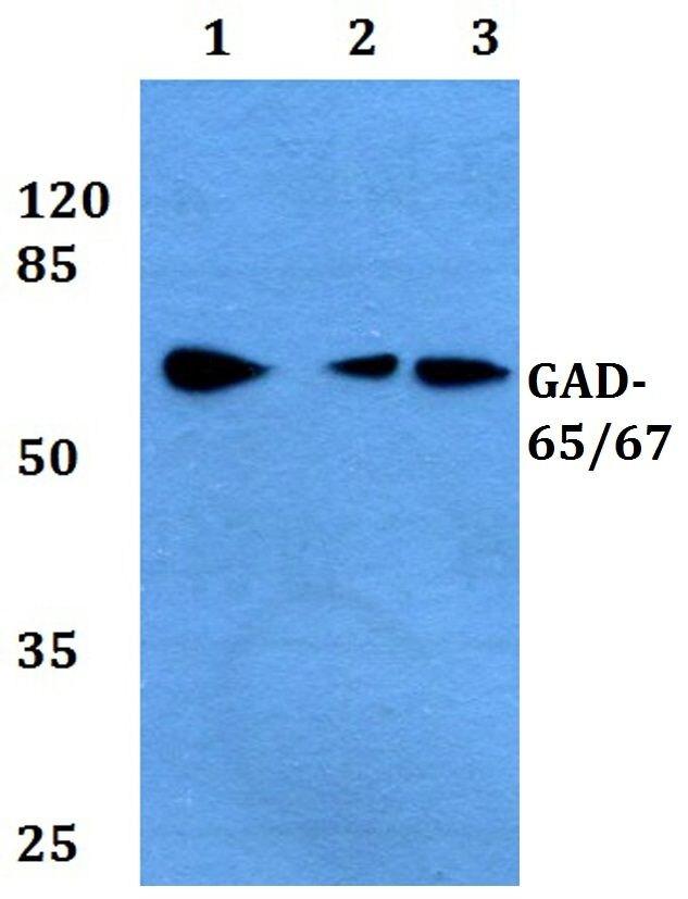 GAD65/GAD67 Antibody (PA5-36080) in Western Blot