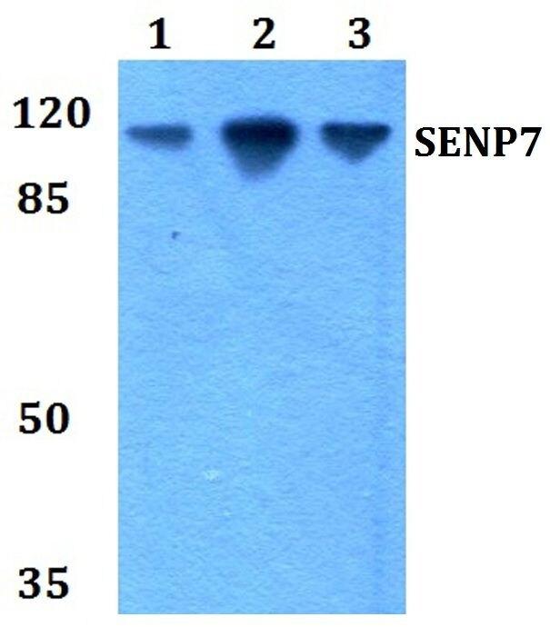 SENP7 Antibody (PA5-36089)