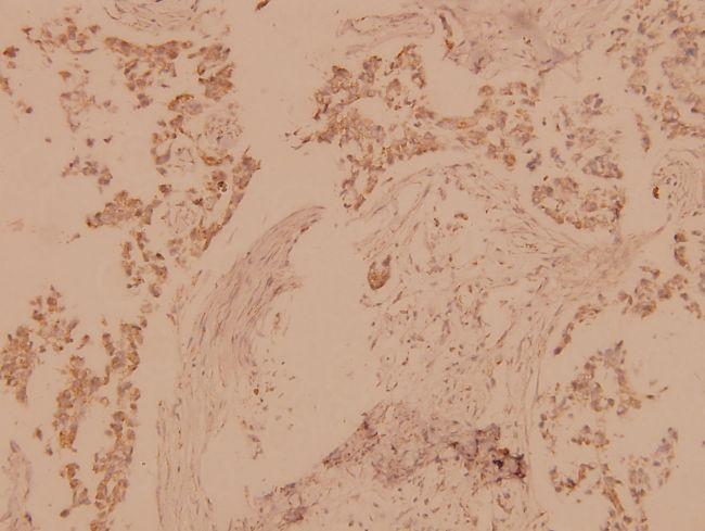 MST1/MST2 Antibody (PA5-36100) in Immunohistochemistry (Paraffin)