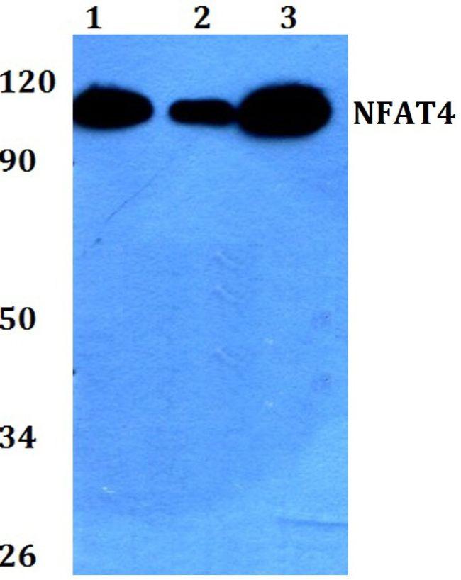 NFATC3 Antibody (PA5-36101) in Western Blot