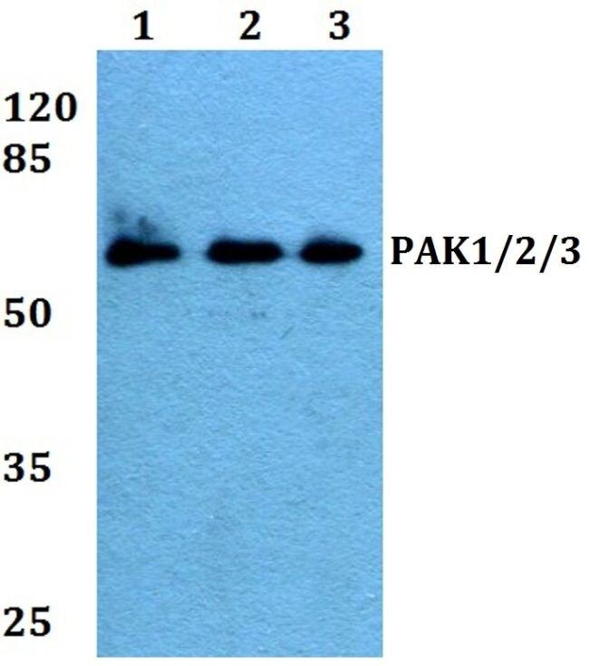PAK1/2/3 Antibody (PA5-36102) in Western Blot