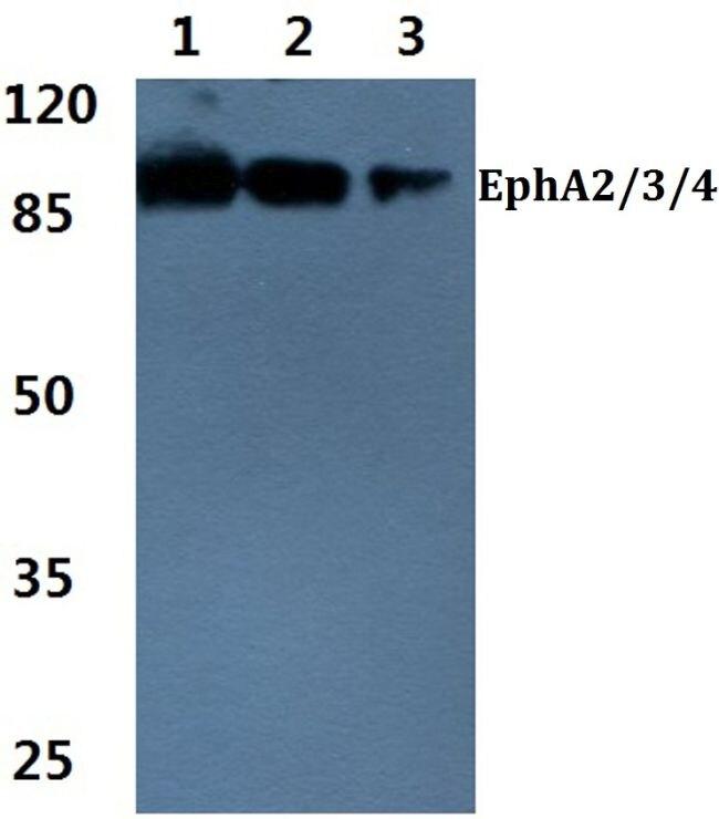 EphA2/EphA3/EphA4 Antibody (PA5-36108)