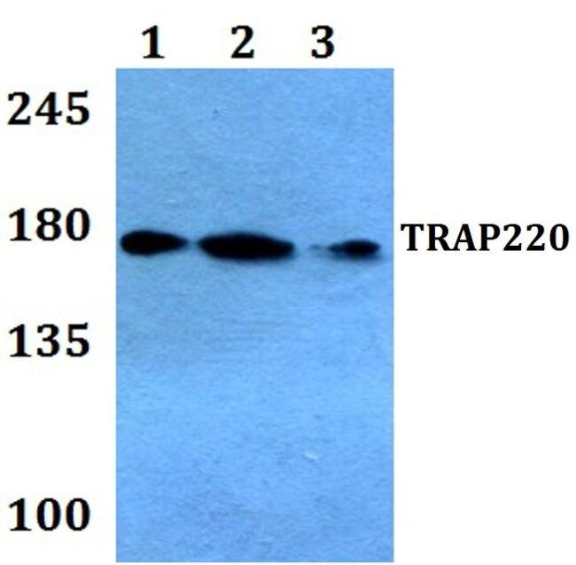 TRAP220 Antibody (PA5-36114)