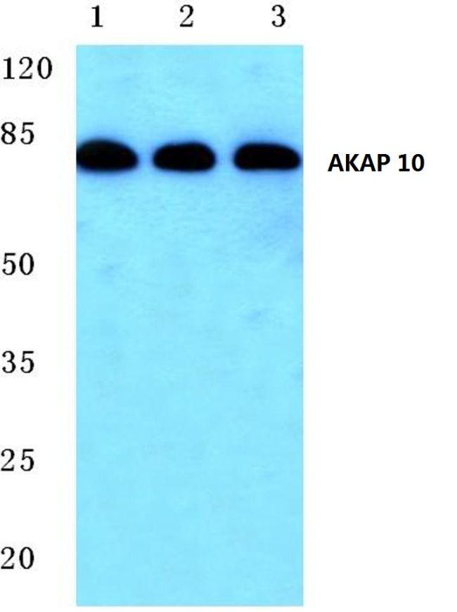AKAP10 Antibody (PA5-36131) in Western Blot