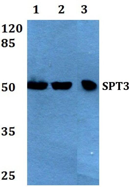 SPT3 Antibody (PA5-36134) in Western Blot