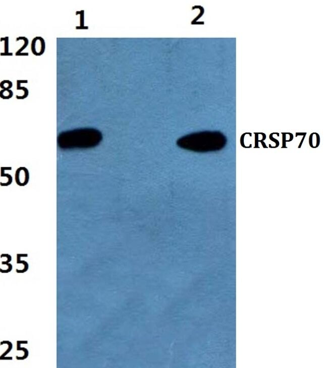 MED26 Antibody (PA5-36140) in Western Blot