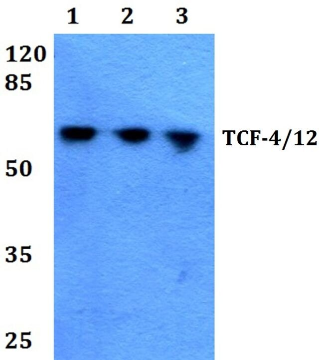 TCF4/TCF12 Antibody (PA5-36151) in Western Blot