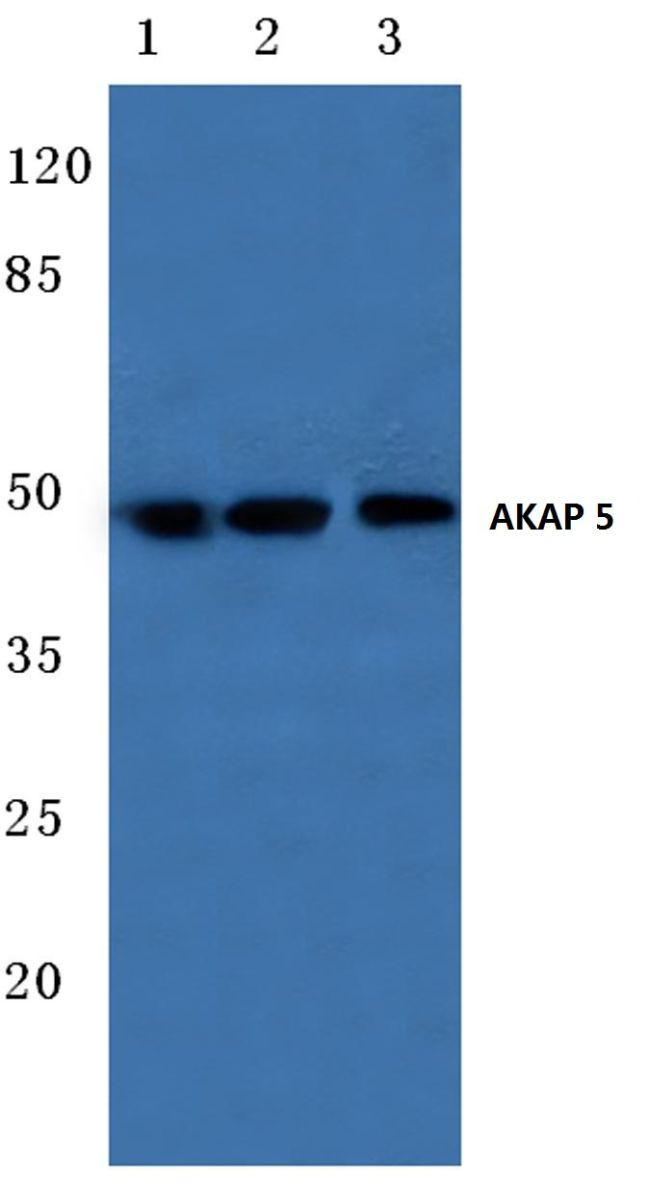 AKAP5 Antibody (PA5-36155) in Western Blot