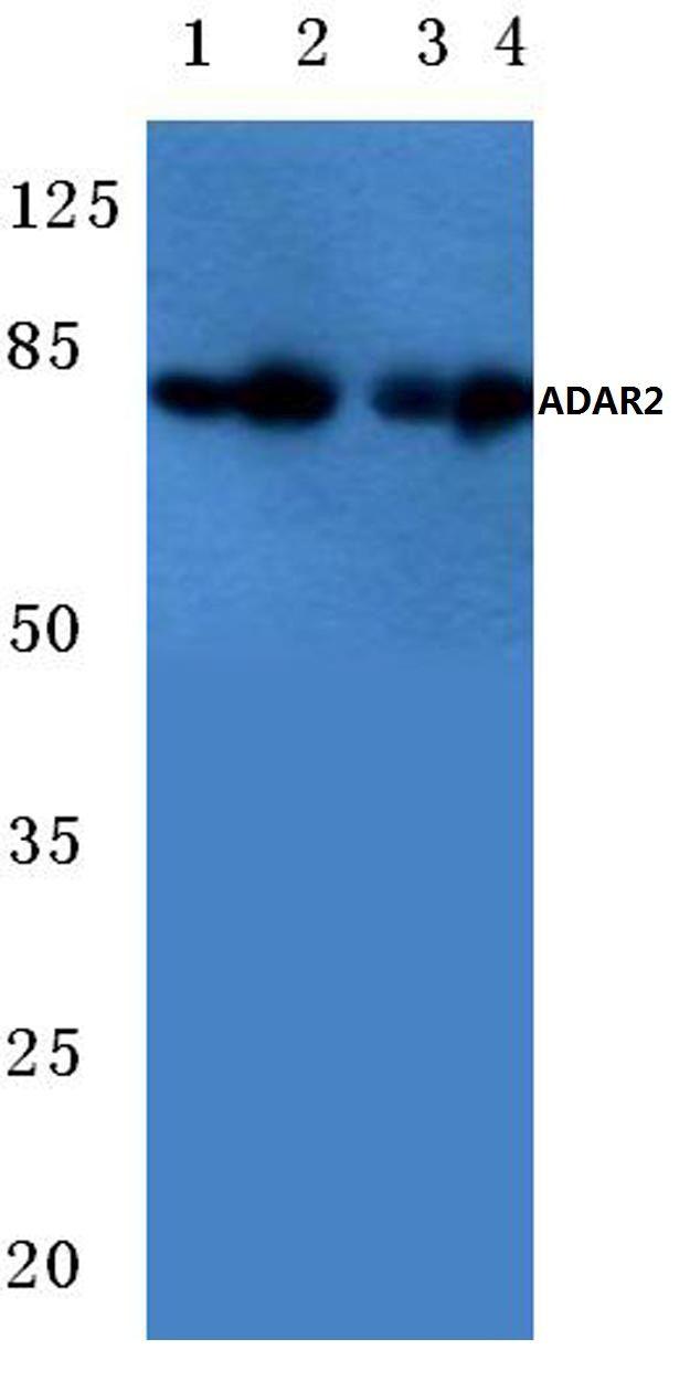 ADARB1 Antibody (PA5-36179) in Western Blot