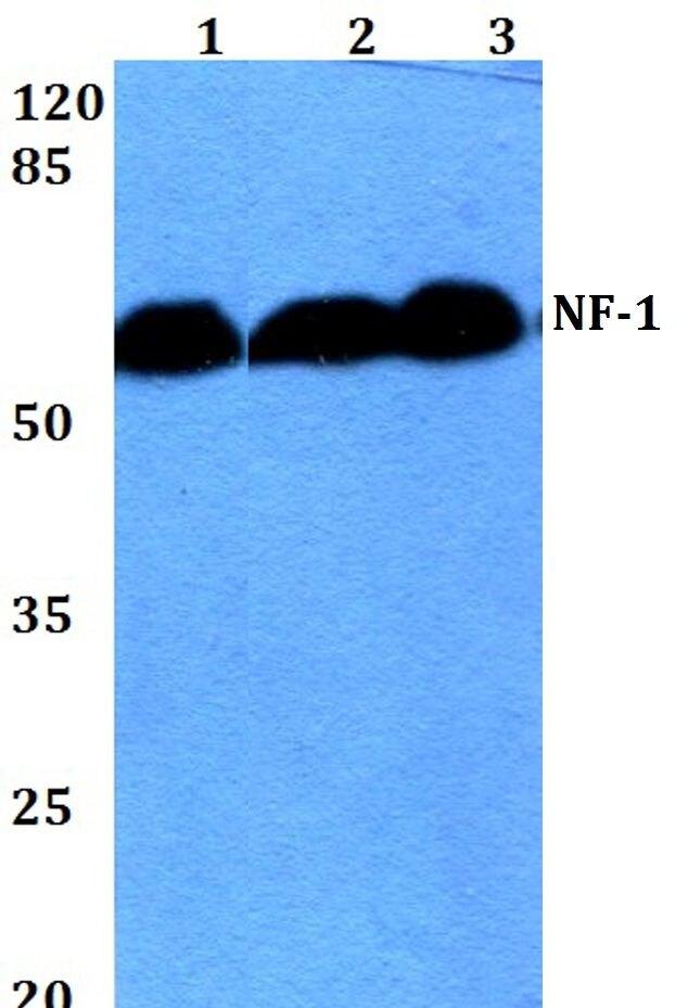 NFI Antibody (PA5-36188) in Western Blot