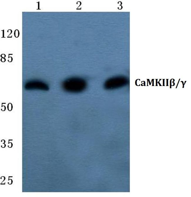 CaMKII beta/gamma Antibody (PA5-36195) in Western Blot