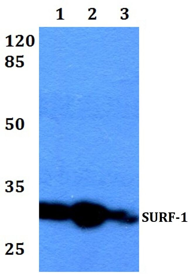 SURF1 Antibody (PA5-36198) in Western Blot