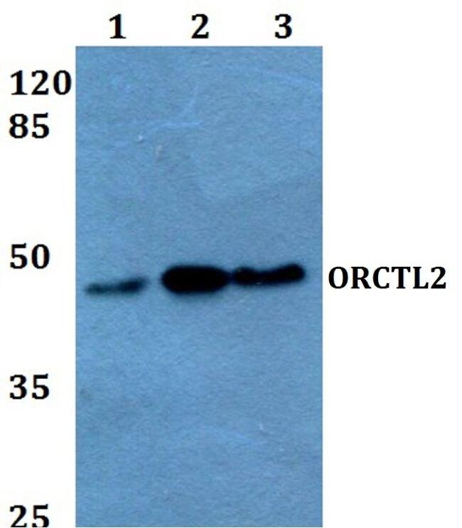 SLC22A18 Antibody (PA5-36212)