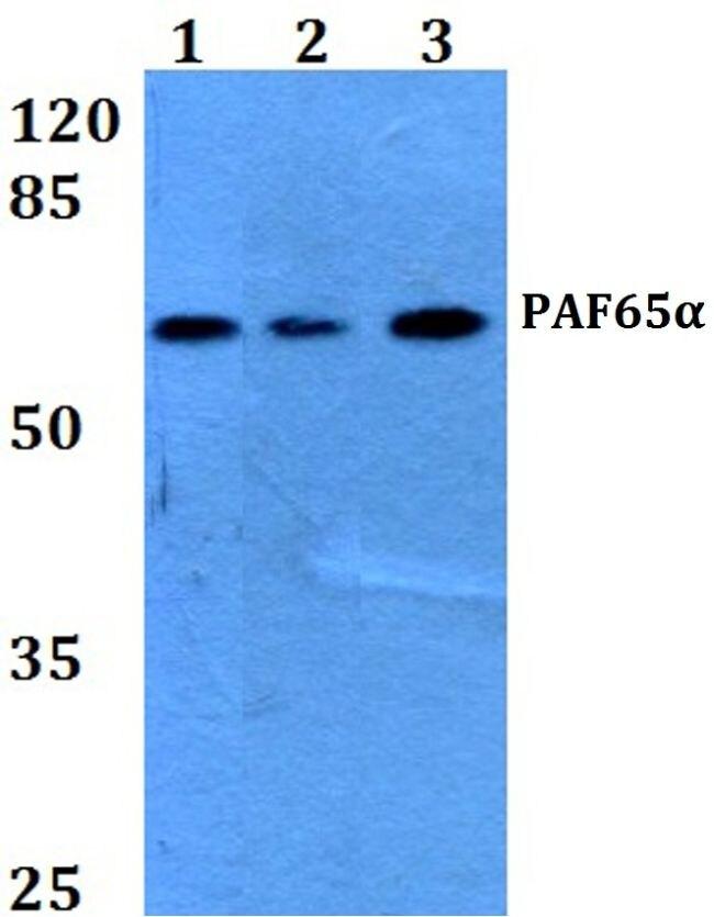 TAF6L Antibody (PA5-36226) in Western Blot