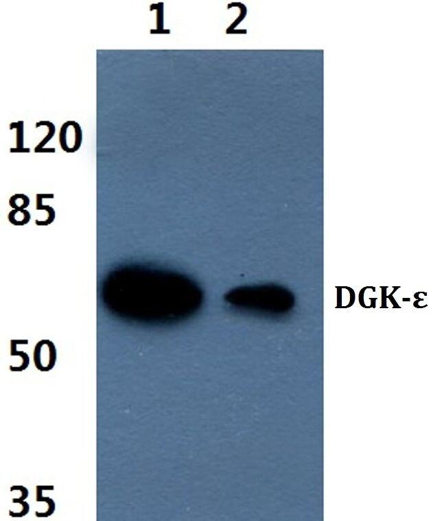 DGKE Antibody (PA5-36250) in Western Blot
