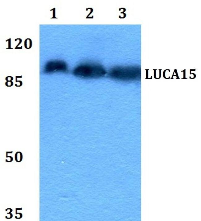 RBM5 Antibody (PA5-36311) in Western Blot