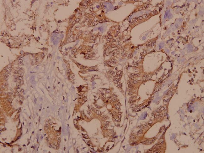 RSK4 Antibody (PA5-36328)