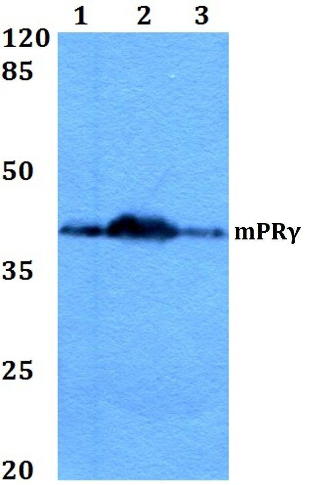 mPR gamma Antibody (PA5-36352) in Western Blot