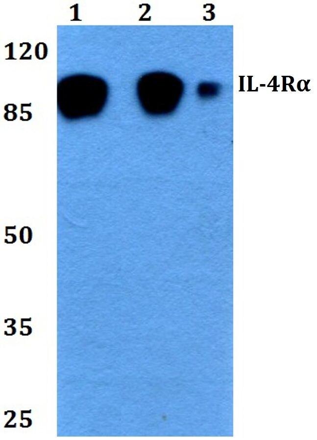 IL4R Antibody (PA5-36394) in Western Blot
