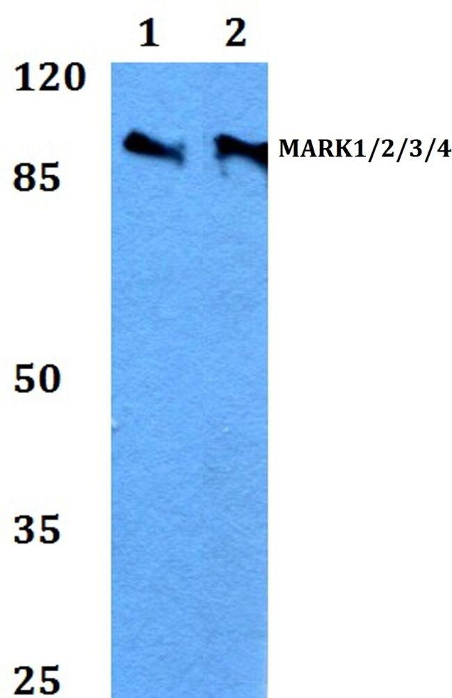 MARK Pan Antibody (PA5-36396) in Western Blot