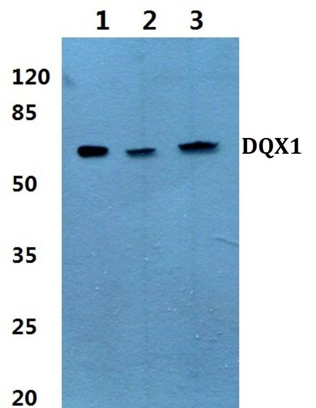 DQX1 Antibody (PA5-36432)
