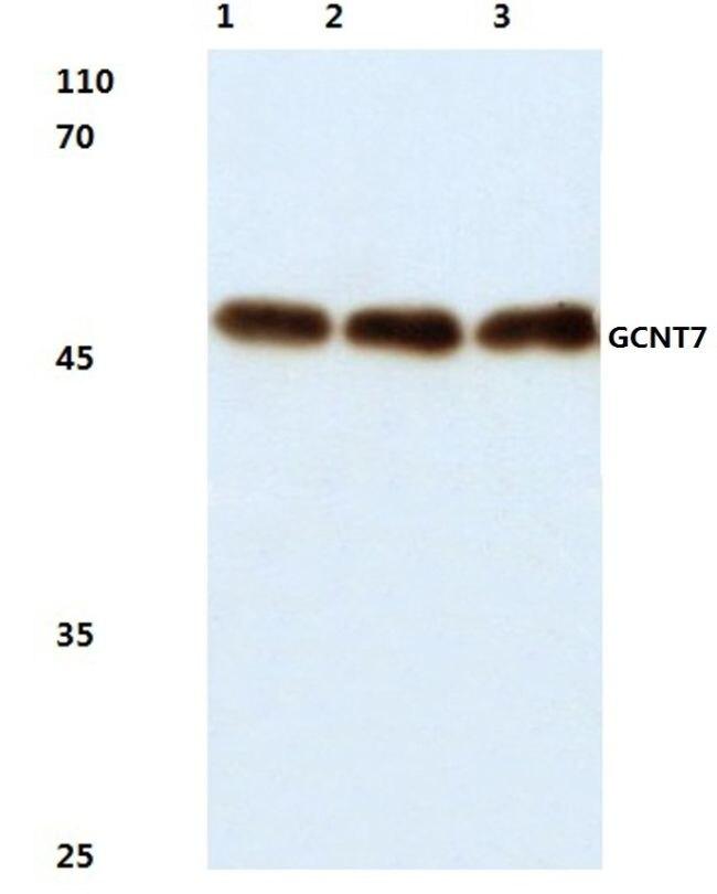 GCNT7 Antibody (PA5-36433)