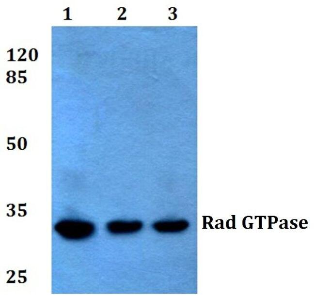 RRAD Antibody (PA5-36460) in Western Blot