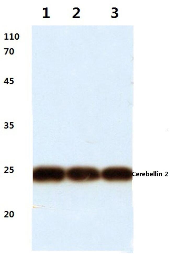 Cerebellin 2 Antibody (PA5-36471)
