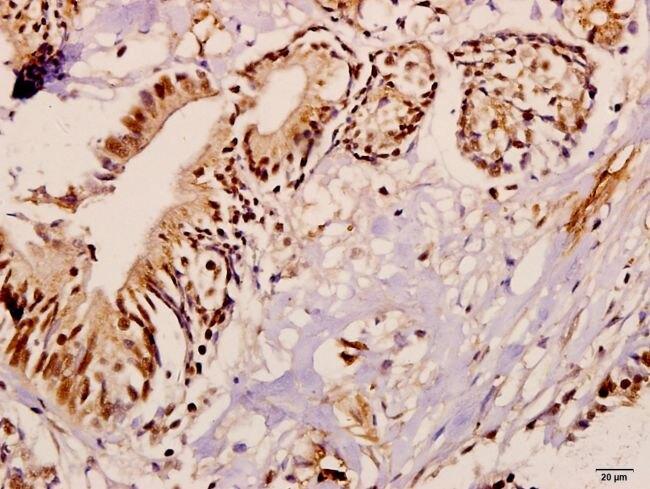 ME3 Antibody (PA5-36494) in Immunohistochemistry (Paraffin)
