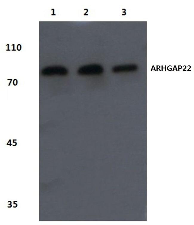 ARHGAP22 Antibody (PA5-36510)