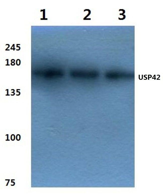 USP42 Antibody (PA5-36513) in Western Blot