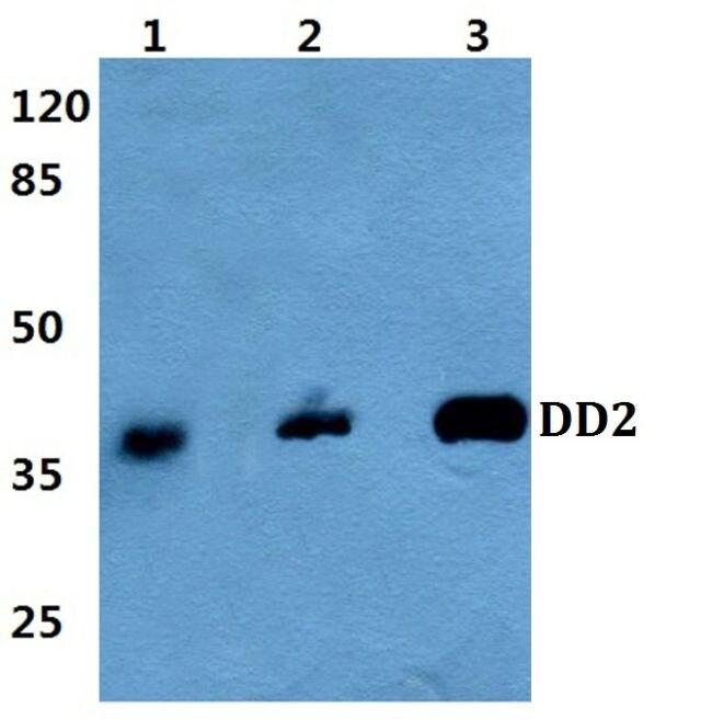 AKR1C2 Antibody (PA5-36572) in Western Blot