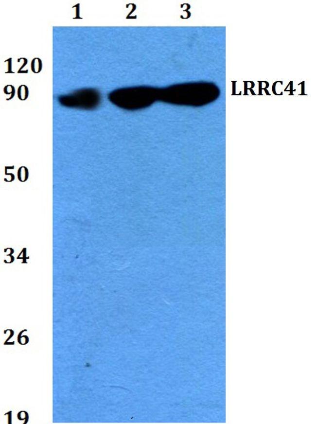 LRRC41 Antibody (PA5-36596) in Western Blot