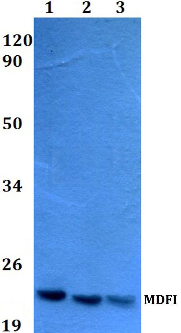 MDFI Antibody (PA5-36599)