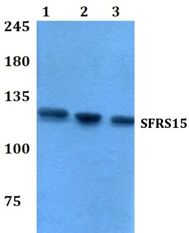 SFRS15 Antibody (PA5-36611) in Western Blot