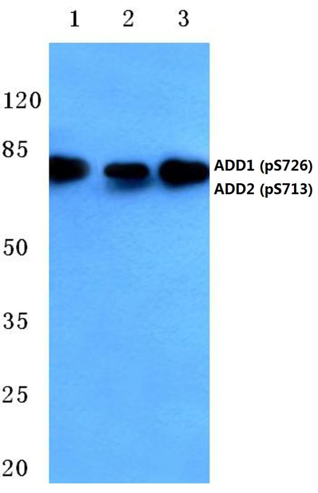 Phospho-ADD1/ADD2 (Ser726, Ser713) Antibody (PA5-36614) in Western Blot