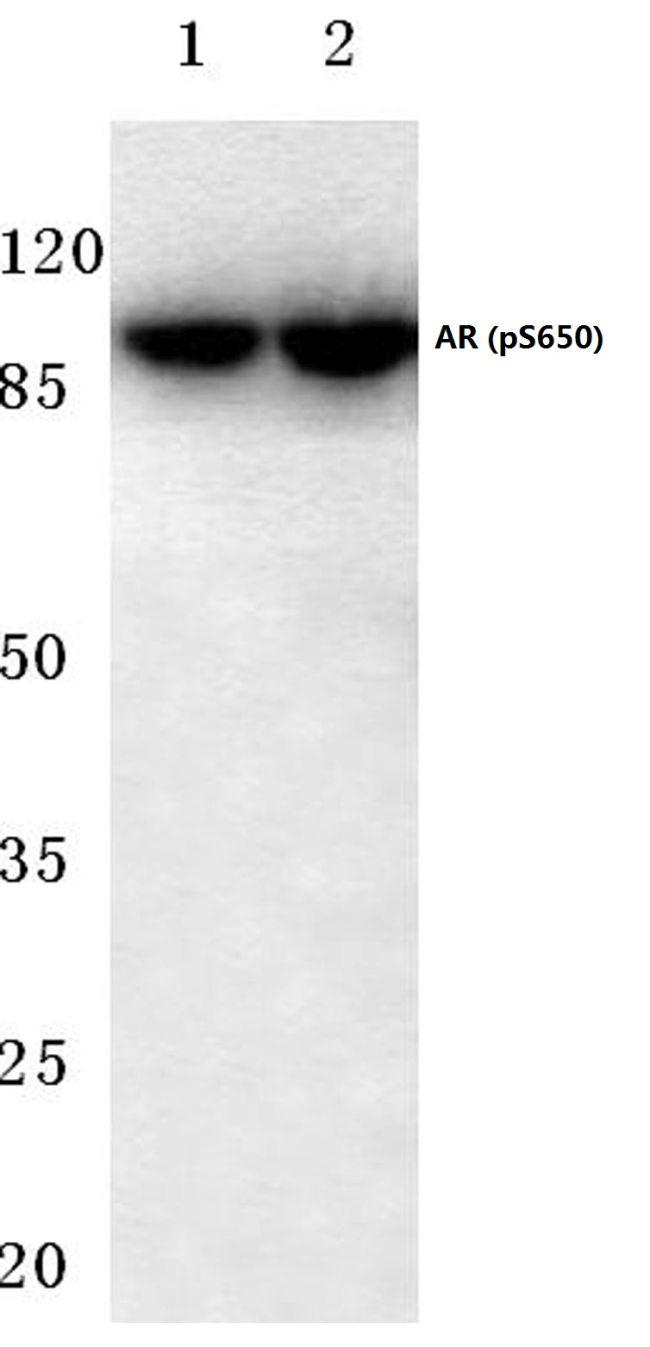 Phospho-Androgen Receptor (Ser650) Antibody (PA5-36617) in Western Blot