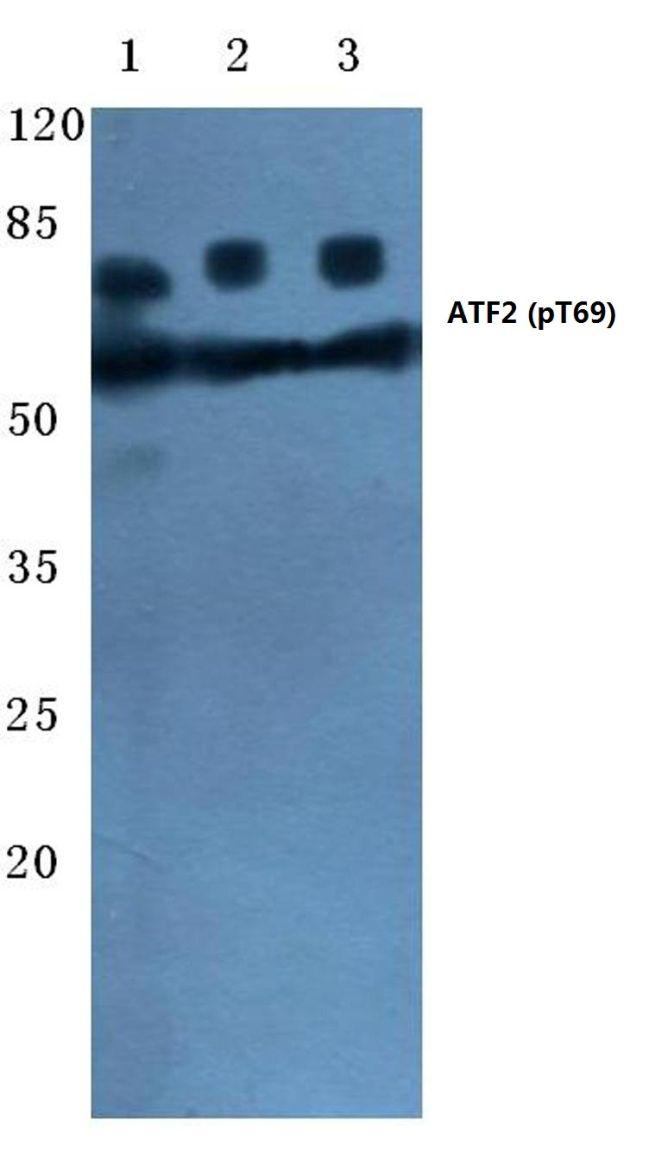 Phospho-ATF2 (Thr69) Antibody (PA5-36622) in Western Blot