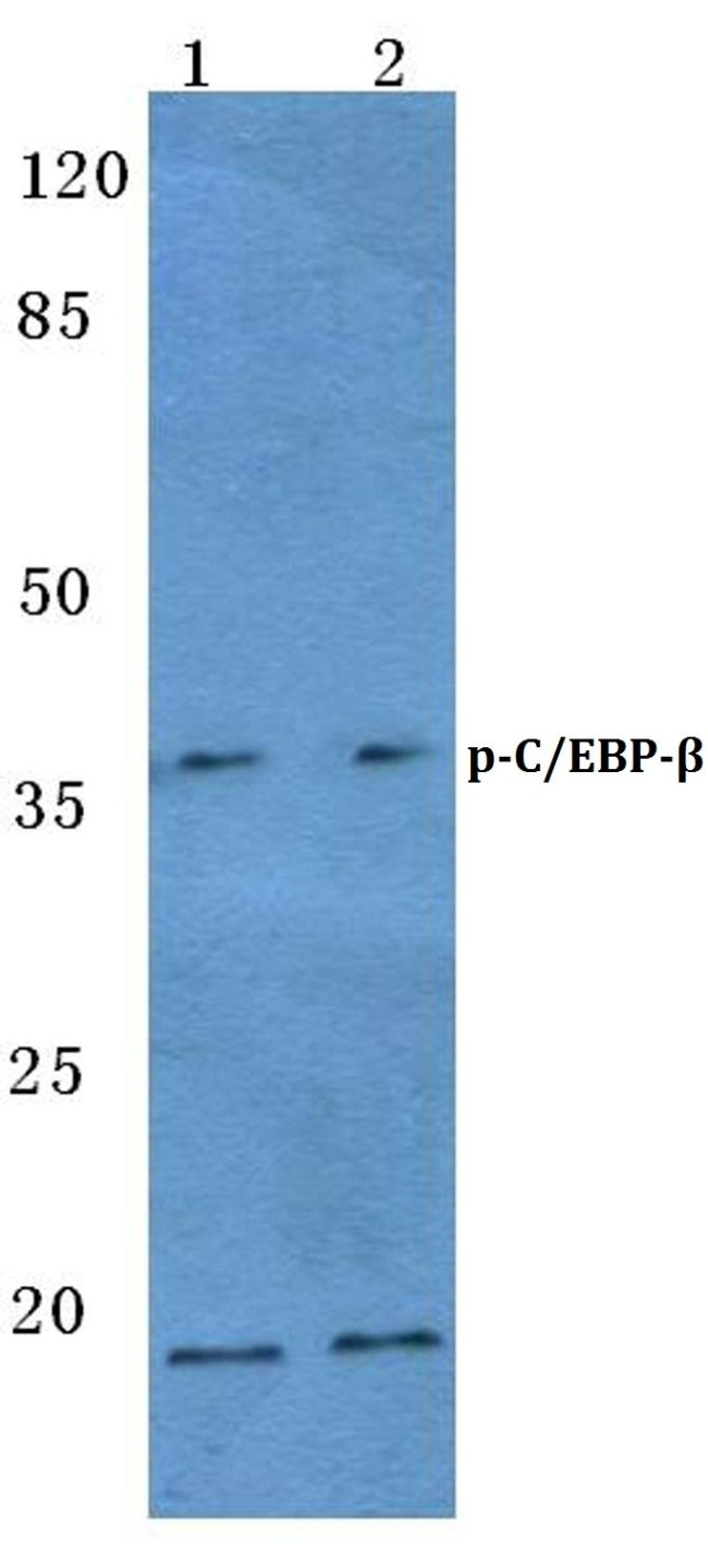 Phospho-C/EBP beta (Thr188, Thr235) Antibody (PA5-36629) in Western Blot