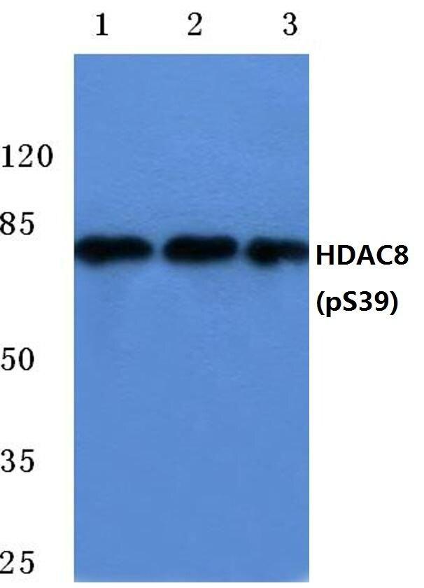 Phospho-HDAC8 (Ser39) Antibody (PA5-36648) in Western Blot