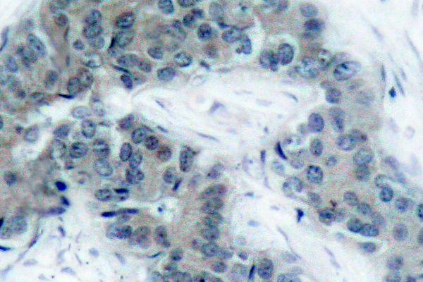 Phospho-JAK2 (Tyr1007) Antibody (PA5-36658) in Immunohistochemistry (Paraffin)