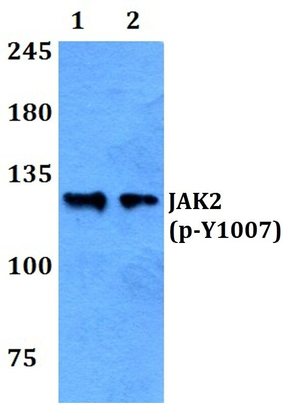 Phospho-JAK2 (Tyr1007) Antibody (PA5-36658) in Western Blot