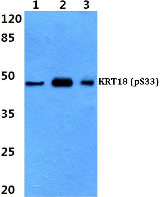 Phospho-Cytokeratin 18 (Ser33) Antibody (PA5-36662) in Western Blot