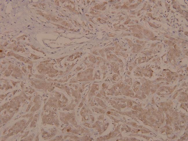 Phospho-MEF2A (Thr319) Antibody (PA5-36667)