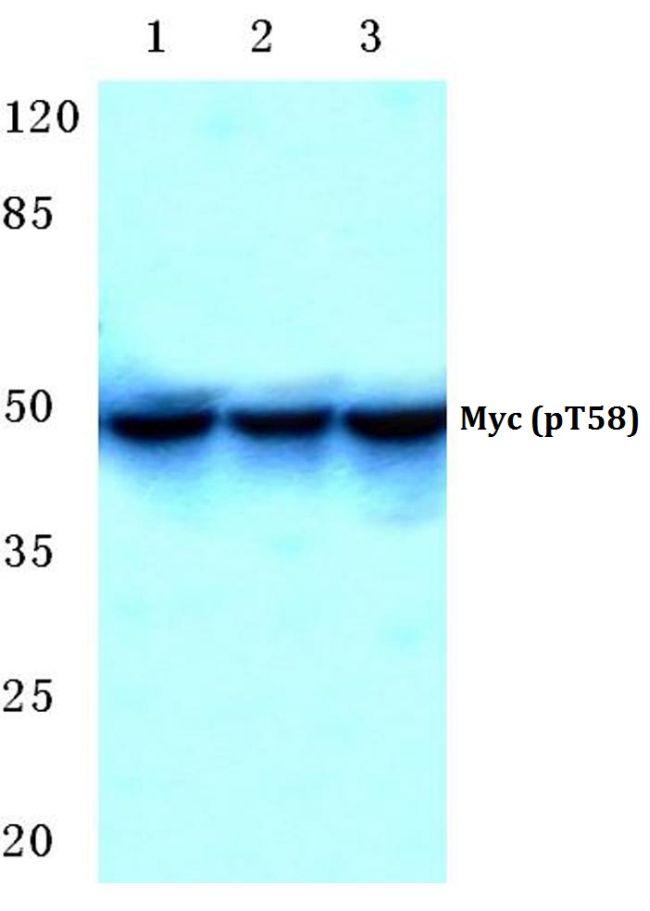 Phospho-c-Myc (Thr58) Antibody (PA5-36673) in Western Blot